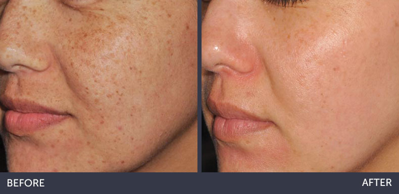 abilene-plastic-surgery-&-medspa-before-&-after-image-abilene-tx-2