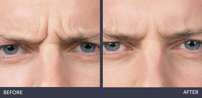 Abilene Plastic Surgery & Medspa botox before & after photo of a male in Abilene, TX