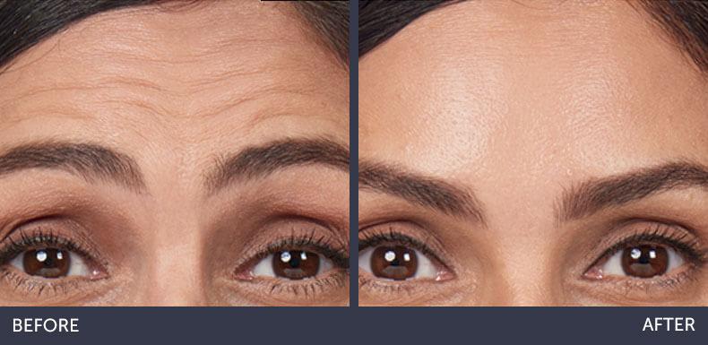 Abilene Plastic Surgery & Medspa botox before & after photo in Abilene, TX