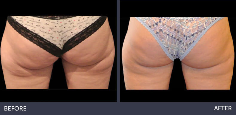 Abilene Plastic Surgery & Medspa CoolSculpting non-surgical fat reduction on the banana rolls before & after photo in Abilene, TX
