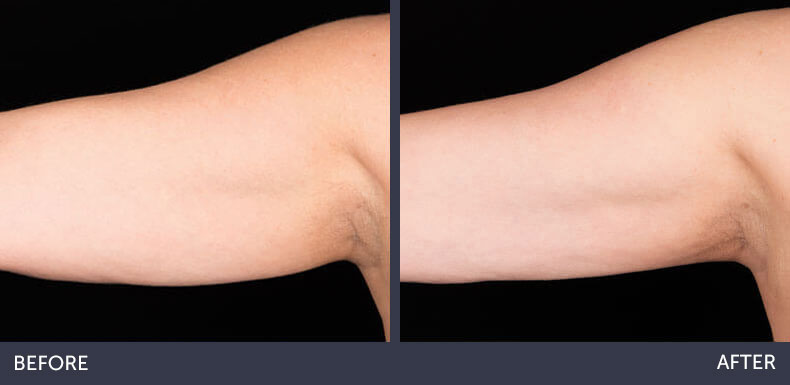 Abilene Plastic Surgery & Medspa CoolSculpting non-surgical fat reduction of the arms before & after photo in Abilene, TX