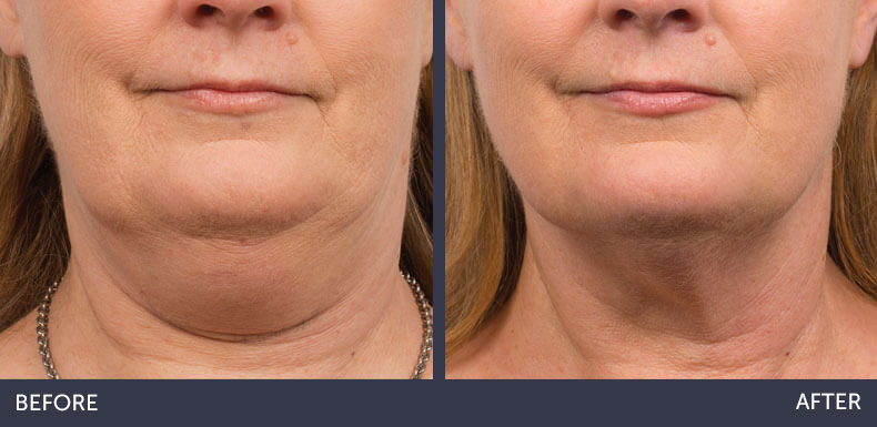 Abilene Plastic Surgery & Medspa CoolSculpting non-surgical fat reduction of the double chin before & after photo in Abilene, TX