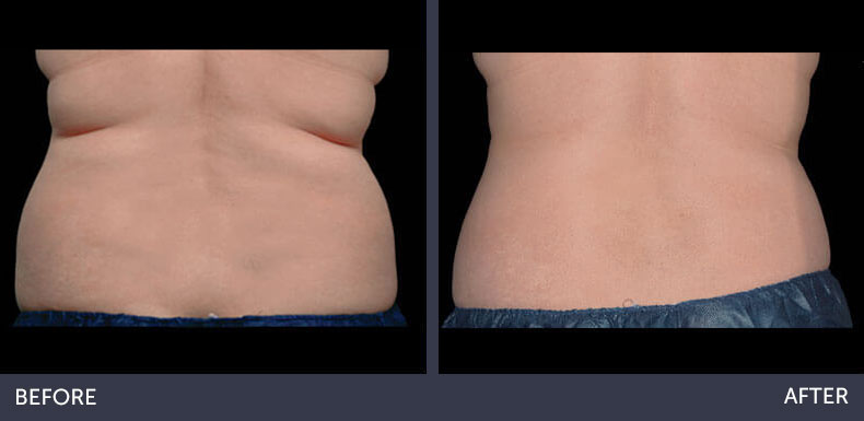Abilene Plastic Surgery & Medspa CoolSculpting non-surgical fat reduction of the bra fat before & after photo in Abilene, TX
