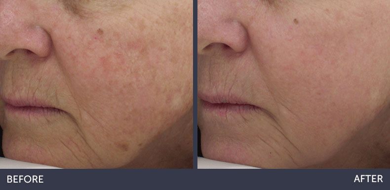 Abilene Plastic Surgery & Medspa halo laser skin renewal before & after photo in Abilene, TX