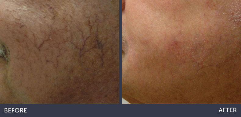 Abilene Plastic Surgery & Medspa BBL Photofacial before & after photo in Abilene, TX