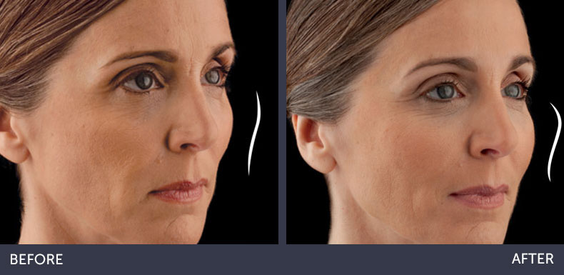 Abilene Plastic Surgery & Medspa dermal fillers before & after photo in Abilene, TX
