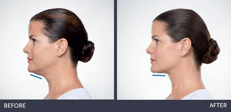 Abilene Plastic Surgery & Medspa kybella before & after photo in Abilene, TX