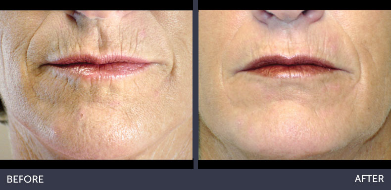 Abilene Plastic Surgery & Medspa Microlaserpeel before & after photo in Abilene, TX