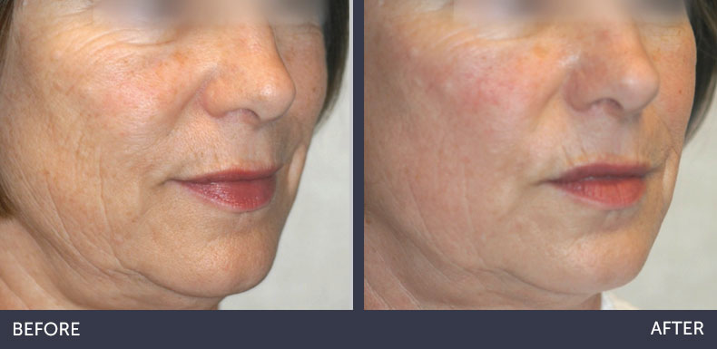 Abilene Plastic Surgery & Medspa Microlaserpeel before & after photo in Abilene, TX